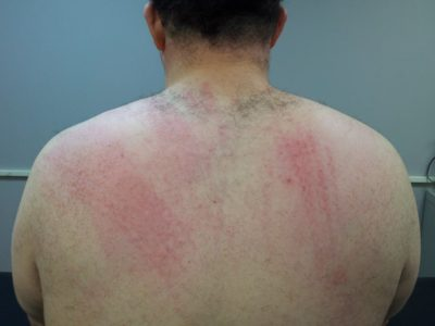 Marks on my shoulder blades from the floggers.